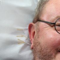 Akupunktur Grundversicherung