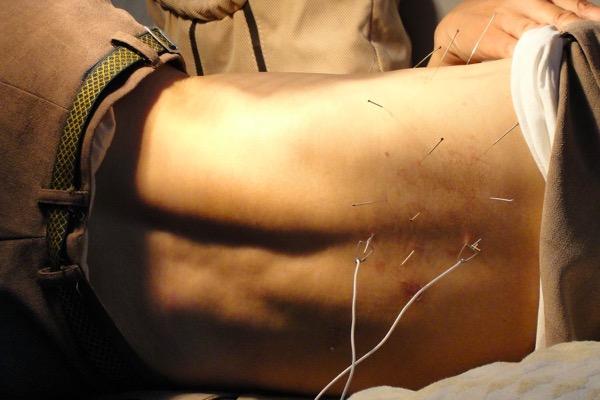 Grundversicherung Akupunktur