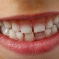Kosten Zahnspange