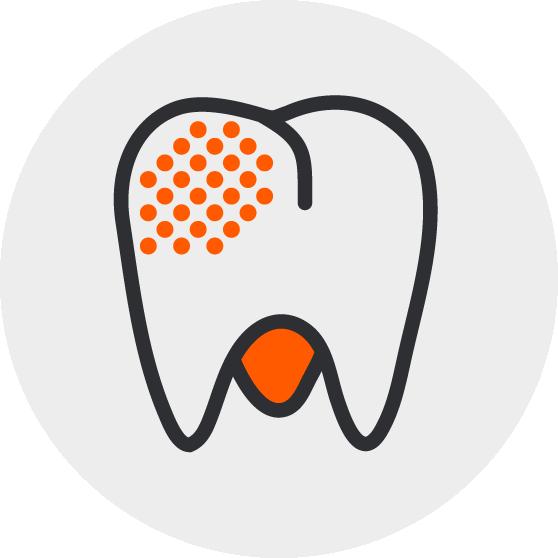 Zahnzusatzversicherung für Spangen, Zahnersatz und mehr